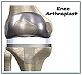Knee Arthroplast